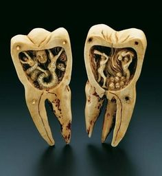 """The Tooth Worm as Hell's Demon"", southern France, 18th Century; This artistically designed ivory carving is contained in a molar, 10.5 cm in height, which can be separated into two halves of equal size. It opens out into two scenes depicting the infernal torments of toothache as a battle with the ""tooth worm"". The legend of the ""tooth worm"" as the cause of toothache originated in Mesopotamia around 1800 B.C. A legend, in much the same sense as that of the Creation, concerning the origin of…"