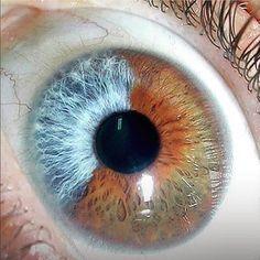 El color del Iris se determina principalmente por la concentración y distribución de melanina, por ejemplo, los ojos marrones tienen…
