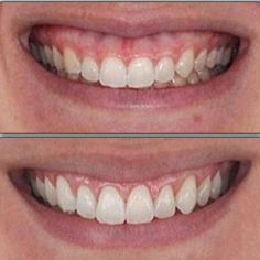 Crown lengthening can give you a bigger, whiter, brighter smile by removing extra gum tissue around your teeth.
