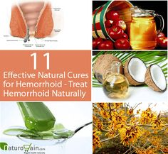 Natural cures for hemorrhoid are the best methods to get rid of piles problem. They retain the good bacteria and kill the bad bacteria to prevent the problem effectively.