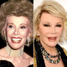 _joan_rivers_ seriously this is madnesss