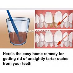 Apply Cider Vinegar soaking your toothbrush in apple cider vinegar and then brushing your teeth as usual. Rinse your mouth well. Aim to do this once or twice per week as the apple cider vinegar can damage your teeth if it's left on too long or used too often. Brush with Baking Soda Swap your regular toothpaste for a little baking soda and a pinch of salt to remove tartar build up on your teeth. making a mouthwash from baking soda by mixing 1/2 cup of baking soda, 1 cup of water, 10 drops of…