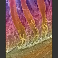 Tendons Attached to Bone