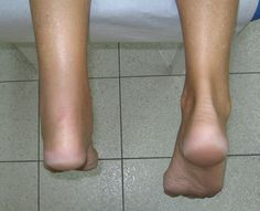Plantar Fasciitis Explained, Dr. Lynch - http://nevadapain.com/videos/plantar-fasciitis-achilles-tendonitis-explained-dr-lynch/ #pain #lasvegas