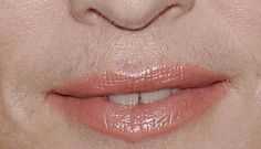 Even Madonna needs an upper lip wax Beard No Mustache, Women With Mustaches, Upper Lip Waxing, Blonde Underneath, Electrolysis Hair Removal, At Home Waxing, Wax Strips, No Lips, Moustaches