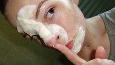 Amélie Epicétout : Mission points noirs : j'ai testé (et approuvé) le masque à l'oeuf