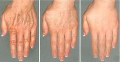 As we age, wrinkles show up all over the face, neck and hands.Here are a few formulas which will diminish wrinkles in a matter of seconds . RECIPE TO COMBAT WRINKLES Aloe gem clears out) Cuc… Best Anti Aging Creams, Anti Aging Tips, Anti Aging Skin Care, Face Wrinkles, Prevent Wrinkles, Homemade Skin Care, Wrinkle Remover, Skin Care Tips, Healthy Skin