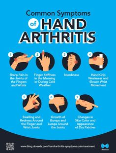 Here, we discuss a condition called hand arthritis. We tackle pain management and rehabilitation options for this degenerative disorder. Types Of Arthritis, Psoriatic Arthritis Symptoms, Arthritis Exercises, Degenerative Disc Disease, Chronic Pain, Fibromyalgia, Proper Diet