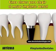 IMPLANTES DENTALES: Cinco claves para elegir el mejor implante dental | Directorio Odontológico