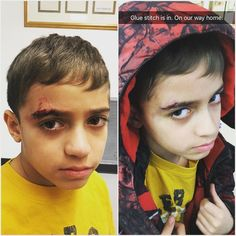 Nyal wanted me to share his before and after pics after his accident at school. (Seriously he did! Despite the sombre posing...he looks so tough eh?) He slipped in the school stairwell and hit the banister.   He's totally fine and has glue instead of stitches for a week. I spent the whole afternoon at Sick Kids who were amazing. They also said he was very brave and calm during the whole procedure.  Glad that my entrepreneur life made it easy to support my sweet boy. We came home and saw…