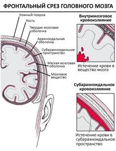 Геморрагический инсульт – stroke-help.ru