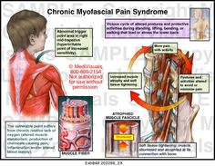 Chronic Myofascial Pain Syndrome. Happens mostly deep in my buttocks muscles. Non- stop agonizing pain. You just deal. ~slg