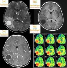 29 Best RadioGyan Radiology images in 2019   Radiology imaging