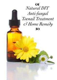 DIY Toenail Fungus Home Remedy - Natural Anti-fungal Toenail Treatment Recipe