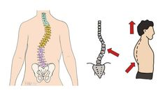 How to Deal with Scoliosis Top 10 Home Remedies, Scoliosis, Health And Wellbeing, Digital, Tips, Advice