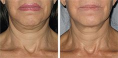 Before-and-after-Ultherapy-treatment remember your chin line?  It does a fantastic job!  ~FACE