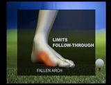 New treatment for Charcot foot -- External frame post-surgery