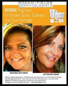Sun Damage skin care