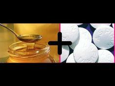 MASCARILLA DE MIEL Y ASPIRINA PARA ELIMINAR ACNE, MARCAS Y BLANQUEAR. - http://solucionparaelacne.org/blog/mascarilla-de-miel-y-aspirina-para-eliminar-acne-marcas-y-blanquear/