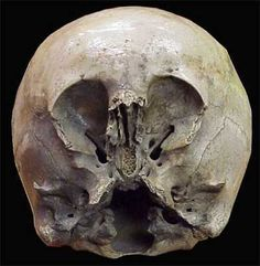 Starchild Skull: found in Mexico ~1930 & claimed to either be the skull of an alien infant or an alien-human hybrid. The lower skull was child-like & the upper cranium was huge. It was claimed to be 900 yrs old and confirmed as an alien skull. Independent DNA testing revealed it to be Native American, belonging to a child who probably had hydrocephalus, or 'water-in-the-brain', a congenital disorder where there is too much fluid in the skull. Sufferers can develop abnormally large craniums.