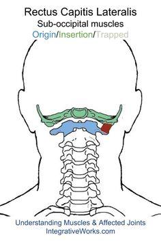oit-rectus-capitis-lateralis                                                                                                                                                                                 More