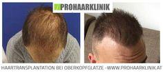Haarimplantation Vorher Nachher