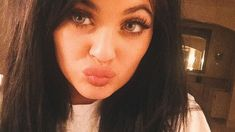 Teens Attempt DIY Kylie Jenner Pout With Potentially Dangerous Results Kylie Jenner  #KylieJenner