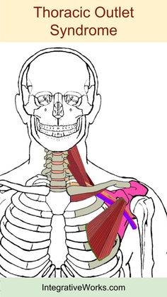 Trigger points pain along the collar bone and down the arm trigger points stiff swollen hands in the morning ccuart Image collections
