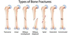 If you are suffering from bone fracture and looking for quick relief, you can contact some expert Bone Fracture Doctor without any delay. We all aware about the bone fractures that normally happened… Stress Fracture, Types Of Fractures, Osteogenesis Imperfecta, Types Of Bones, Nursing Care Plan, Nursing Goals, Student Nurse, Environmental Science, Health Education