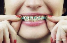 How to Make Fake Braces or a Fake Retainer. Fake braces or a fake retainer can be fun to wear as part of a costume. They can also be fun if you simply like the look of braces but do not require them. You can make fake braces and a fake. Fake Braces, Braces Tips, Kids Braces, Teeth Braces, How To Make Braces, Crystal Earrings, Stud Earrings, Diamond Earrings, Earring Backs
