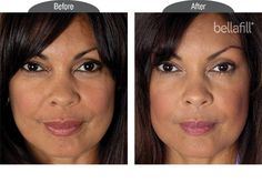Bellafill immediately adds volume below smile lines to lift them to the level of the surrounding skin.