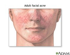 Effective Treatment Options For Acne-Take notice the more you rub your or touch your skin it will make your acne get worse and deplete your skin of natural protective oils. It's as bad as laying out in the sun. Natural Acne Remedies, Home Remedies For Acne, Herbal Remedies, Natural Cures, Health Remedies, Acne Facial, Acne Skin, Facial Care, Facial Treatment