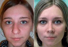 Remodelación de nariz sin cirugía