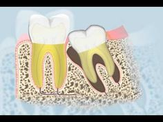 Dental Patient Education - Wisdom Teeth