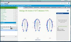 Human Energy Field (HEF) – is the most sensitive reflection of physical, emotional and, in some cases, spiritual condition of a person.  http://www.gdvsoftware.com/hef-measuring/