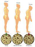 Kyphosis exercise treatment ! Spinal Osteoporosis ! Exercise treatment