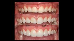 Minimal prep porcelain veneers similar to Lumineers. Before (top), Minimal prep (middle), After (bottom). Cosmetic dentistry by Dr. Mike Maroon of Advanced Dental in Berlin, CT.