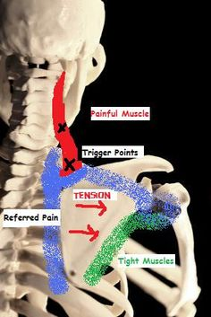See where it says 'tight muscles' in green? Those muscles are on the outer side of your shoulder blade. It's causing pain and dysfunction in the red and blue areas. Stretch and massage those tight areas to get rid of your pain. If you have massage onl Massage Tips, Massage Benefits, Massage Therapy, Fatiga Adrenal, Trigger Point Therapy, Reflexology Massage, Qi Gong, Trigger Points, Anatomy And Physiology