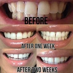 Teeth Whitening System, White Teeth, Live Long, Anti Aging, Nu Skin, Boss Babe, Life, Beauty, Cosmetology