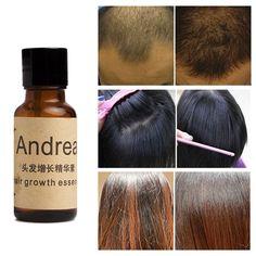 Andrea Hair Growth Essence Hair Loss Liquid 20ml dense hair free shipping 1 bottle  Price: 4.91 USD
