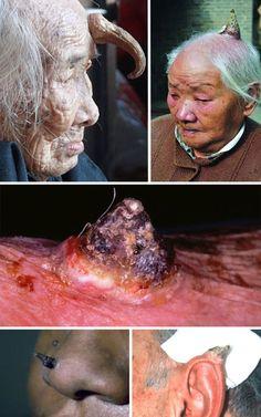 Deformities and Genetic Mutations (32 photos)