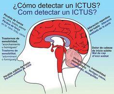 Como detectar un Ictus?