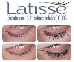 Latisse is the only FDA approved product clinically proven to make lashes darker, longer, and thicker. The best way to apply is to uncap the bottle, place one drop of the solution in the cap, and dip