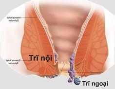 Bệnh trĩ là gì ? chữa ở đâu ? Xem ngay tại: http://phongkhamankhang.vn/benh-tri-la-gi-va-co-nguy-hiem-khong/