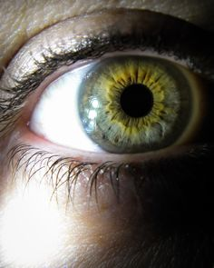 https://flic.kr/p/DBWCQU | central_heterochromia_eye-7  Central Heterochromia