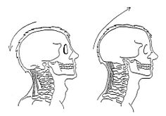 Directive 1. (left) Before the Alexander Technique is applied. (right) Practicing the Alexander Technique. Allow the neck muscles to ease (free). Allow the head to go forward and up from the spine.