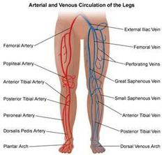 What is chronic venous insufficiency? Chronic venous insufficiency occurs when the leg veins do not allow blood to travel back to the heart. Varicose Vein Remedy, Varicose Veins, Arteries Anatomy, Vascular Ultrasound, Interventional Radiology, Medical Anatomy, Human Anatomy And Physiology, Nursing, Physical Therapy