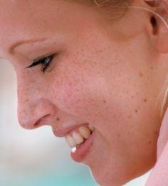 freckles melasma hyperpigmentation on pinterest melasma treatment home remedies and natural. Black Bedroom Furniture Sets. Home Design Ideas