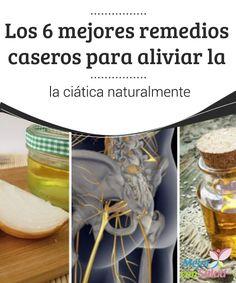 Los 6 mejores remedios caseros para aliviar la ciática naturalmente   La ciática es una condición que puede causar dolor e incapacidad física. Descubre 6 remedios para combatirla de forma natural.