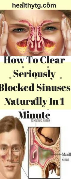 clear-seriously-blocked-sinuses-naturally-1-minute/